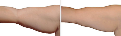 ba-coolsculpting-armfat.jpg