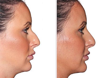 ba-filler-nose-fem2.jpg