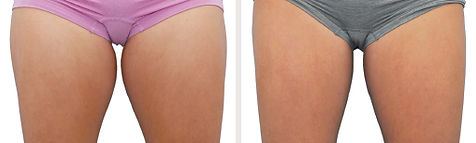 ba-coolsculpting-thighs2.jpg