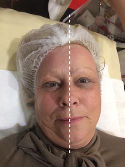 Anti-ageing BA Womanface.JPG