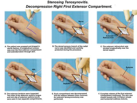 Medical Procedure on Wrist