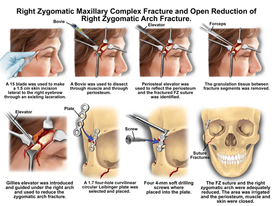 Medical Procedure Brow Fracture