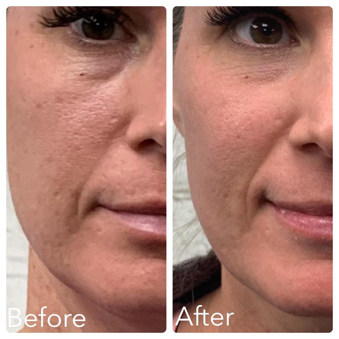 C02 Filter Facial (1st Treatment)