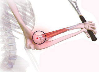 BLESSURE: wat te doen bij tenniselleboog of epicondylitis?