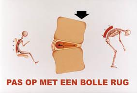step-5342-pas-op-bolle-rug (1)
