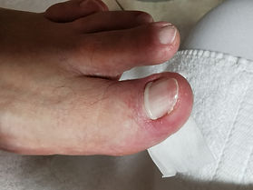 An ingrown toenail being treated with the painless, non-invasive system
