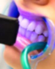 teeth%20whitening_edited.jpg