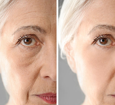 Senior woman before and after biorevital