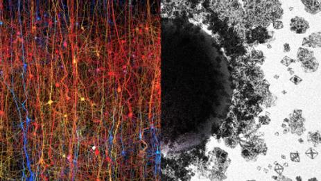 Um multiverso dentro do nosso cérebro? cientistas encontram 11 dimensões dentro do cérebro