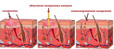 Папилломы кандиломы Минкевич врач гинеколог
