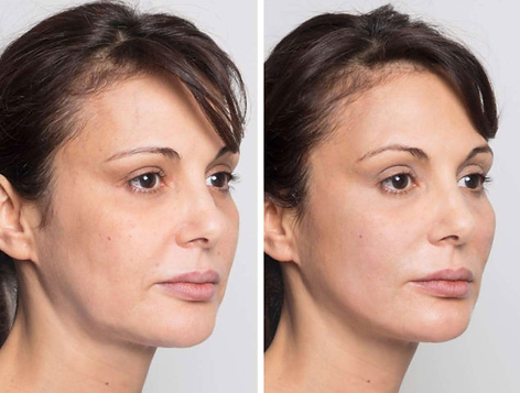 InstaLift Face example Before and after.