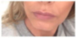 Kybella jowls and under chin_edited.jpg