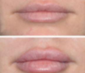 Juvederm Lips.jpeg