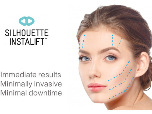 What to Expect Before, During, & After Silhouette InstaLift(TM) Face Thread Lift