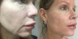 Before & after InstaLIft midface glossho