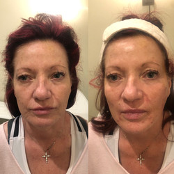 Face InstaLift Before & After