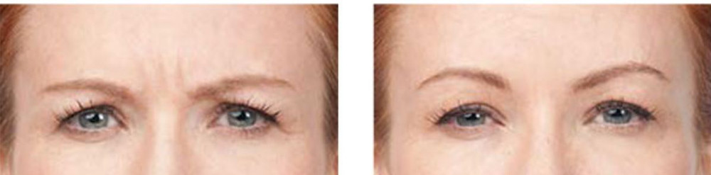 BOTOX Before & After between brows