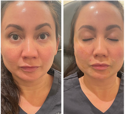 InstaLift Face before and after