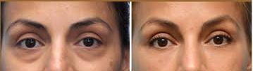 Restylane for under eyes