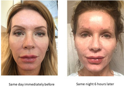 Before & After Silhouette Face InstaLift