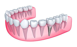 st-joe-dental-implants.jpg