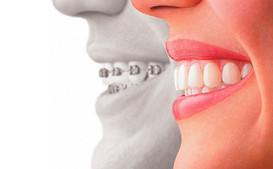 st-joe-cosmetic-dentistry.jpg