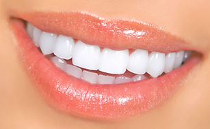 st-joe-porcelain-veneers.jpg