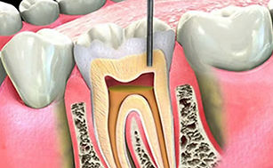 st-joe-root-canal.jpg