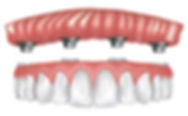 st-joe-dentures.jpg