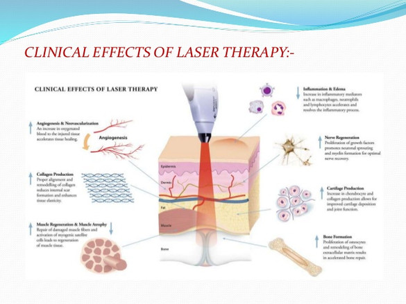 laser-therapy-power-point-6-638.jpg