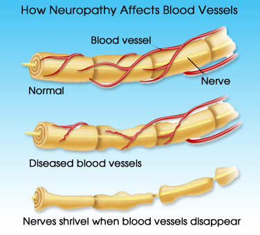 This image shows how prolonged neuropathy occurs. If you are facing symptoms of neuropathy, book a consultation with us show we can help save you from the devastating effects of this disease.