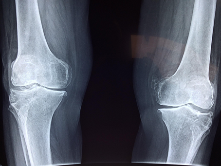 Joint Replacement Surgery and Obesity