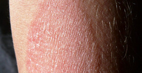 DO YOU HAVE ECZEMA?