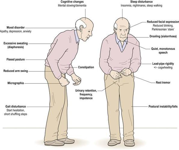 Image result for motor symptoms of parkinson's disease