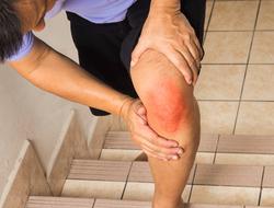 UNDERSTANDING WHAT ARTHRITIS IS