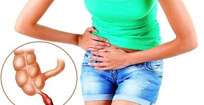 HOW MUCH DO YOU KNOW ABOUT APPENDICITIS?