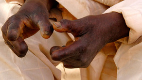 LEPROSY: A DISEASE THAT COMES WITH STIGMA