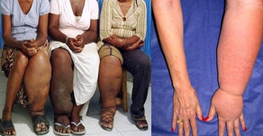 ELEPHANTIASIS: A DISEASE THAT SEEMS NEGLECTED