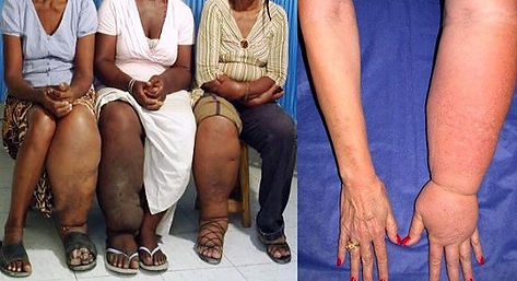 Elephantiasis A Disease That Seems Neglected