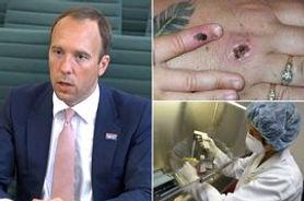 Monkeypox outbreak in UK as Matt Hancock