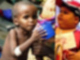 Malnutrition2.jpg
