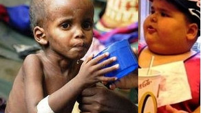 MALNUTRITION: THE LARGEST CONTRIBUTOR TO CHILD MORTALITY