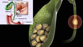 GALLSTONES: WHAT ARE THEY?