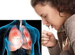Pneumonia6.jpg