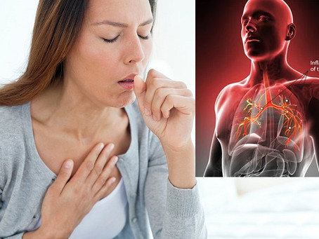 THE NAGGING COUGH CALLED BRONCHITIS