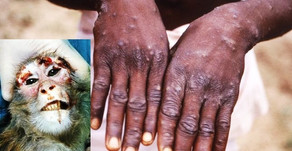 WHAT TO KNOW ABOUT MONKEYPOX