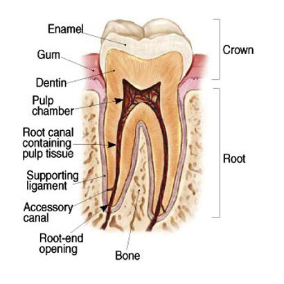 TOOTH DECAY: CAVITIES ALSO KNOWN AS DENTAL CARIES