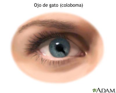 síndrome de ojo de gato
