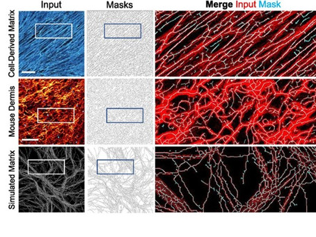 A FIJI macro for quantifying pattern in extracellular matrix