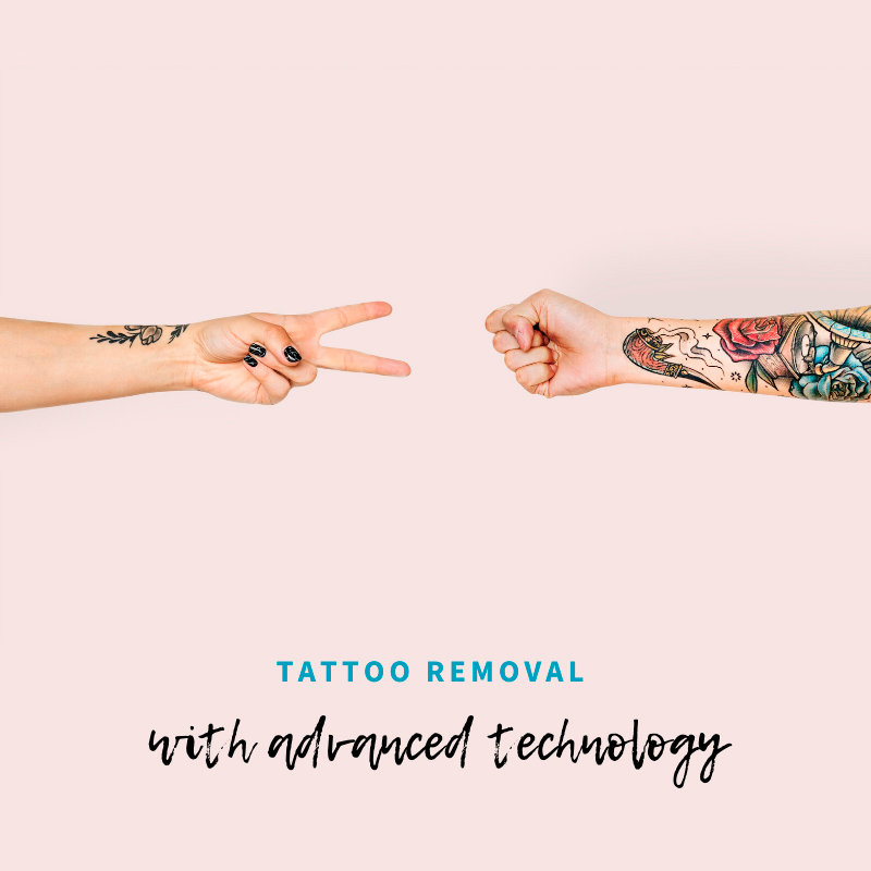 Tattoo Removal - Fast - Professional